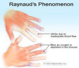 Choroba Raynauda